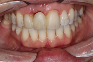 Moving Denture Bone Loss And Bone Points